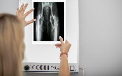 Złamania a rozwój kostniakomięsaka u psów